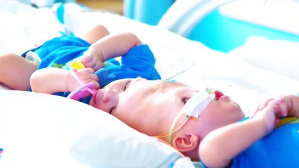 Jadon och Anais McDonald föddes som siamesiska tvillingar. De satt ihop i huvudet vilket är extremt ovanligt.