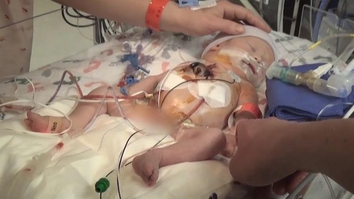 Enda chansen till överlevnad var en operation direkt efter förlossningen via akut kejsarsnitt.