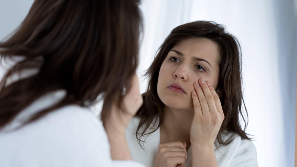Huden kan kännas kall och svullen när man lider av hypotyreos.