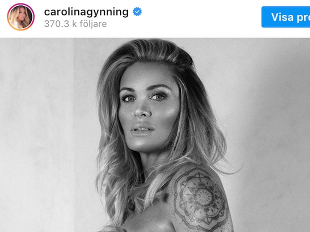 Carolina Gynning om kampen att bli gravid