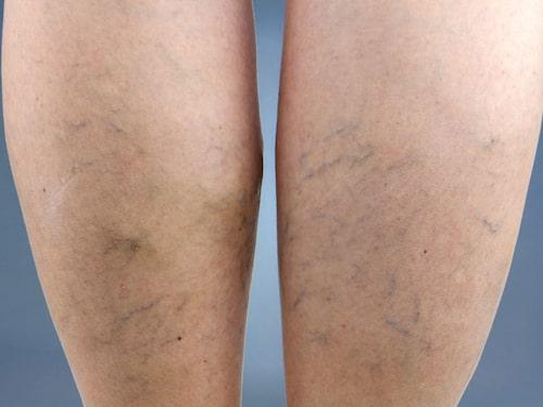 Var trejde vuxen har åderbråck. Det ökar risken för svullna ben. Då är stödstrumpor en god vana.