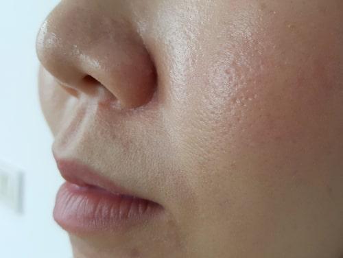 Förstorade porer sitter vanligtvis på kinder och näsa, men kan även förekomma i andra delar av ansiktet.