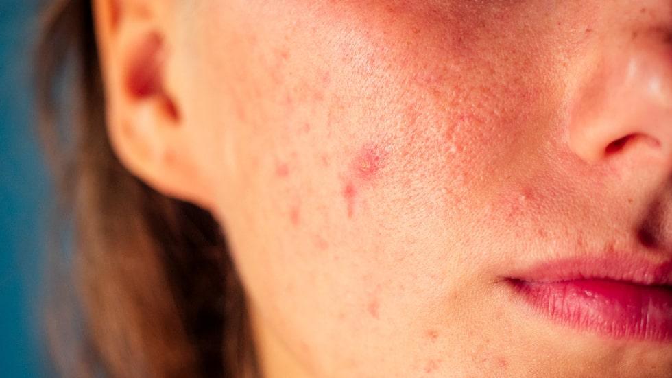 Acne är ett tecken på en förhöjd andel manliga könshormoner. Ungefär var fjärde kvinna med PCOS har problem med akne. Också tunt hår och håravfall, alopeci, kan vara ett symptom på en förhöjd andel manliga hormoner.