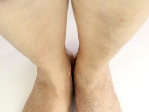 Kommer svullnaden och smärtan ganska snabbt, på minutrar eller timmar, och oftast bara i ena benet? Sök vård akut för att utesluta propp.