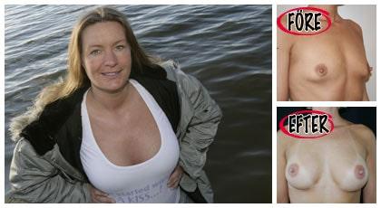 """Tvåbarnsmamman Minna Virtanen, 34, är jättenöjd med sina nya bröst. Nu väntar hon sitt tredje barn. """"Det ska fungera att amma efter bröstoperationen också"""", säger hon"""