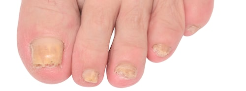 Så här kan nagelsvamp se ut