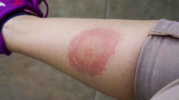 Erythema migrans på ben som följd av borrelia.