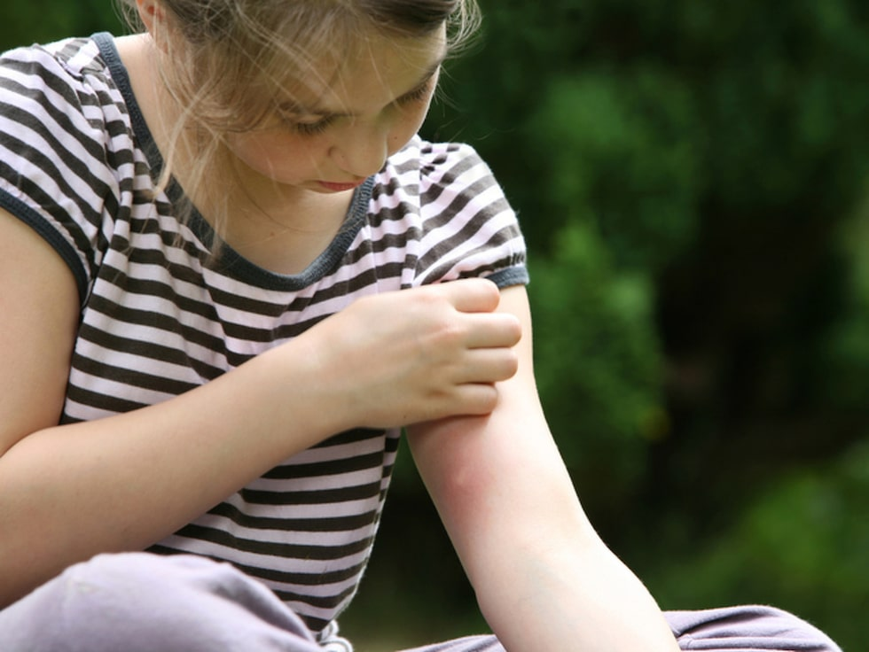 Blir du ofta angripen av myggor? Det finns flera orsaker!