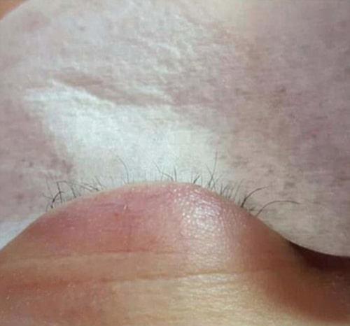 Tjejens naturliga ögonfransar föll av.