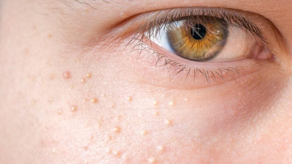 Milier är små knottror som ofta uppkommer runt ögonpartiet.