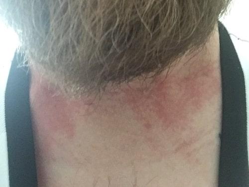 Robin får lätt allergiska reaktioner också på huden – så här såg utslagen ut i början av sjukdomsförloppet.