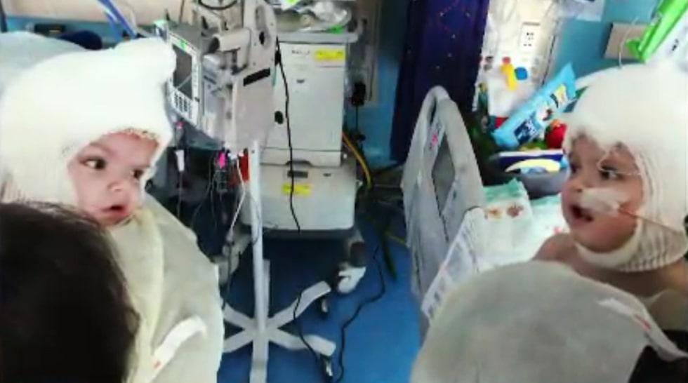 Men efter en lång operation är de nu äntligen separerade. Ögonblicket när de ser varandra för första gången fångades på bild.