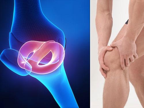 Vid meniskskada kan det uppstå små sprickor i en menisk eller att en bit lossnar.