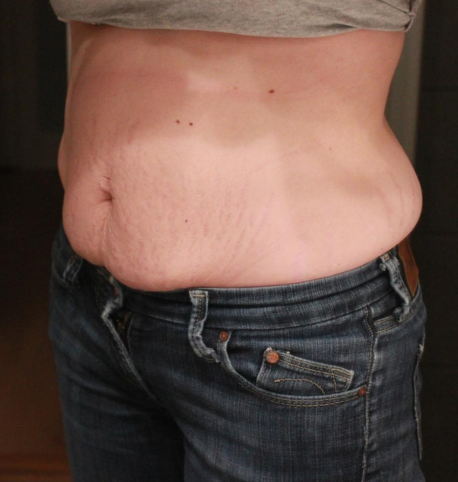 Trebarnsmamman Jannice Nordin, 28, från Härnösand har funderat på att operera bort överflödigt skinn på magen.– Min blivande man tycker att jag är löjlig, men för mig är det inte kul att inte kunna ha på mig de kläder jag vill och inte känna mig fin. Jag kan bli avundsjuk på hur andra kvinnor tycks få tillbaka sin kropp så snabbt.