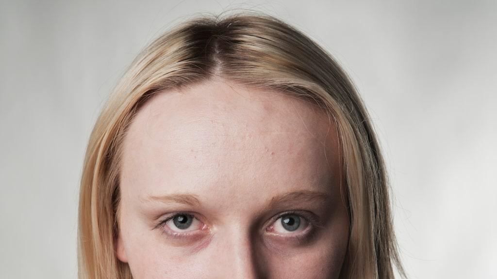 Slemhinnor och ögonvitor: Munnen och ögonen blir blekare vid kraftig blodbrist, eftersom de i vanliga fall färgas av de ytliga blodkärlen.
