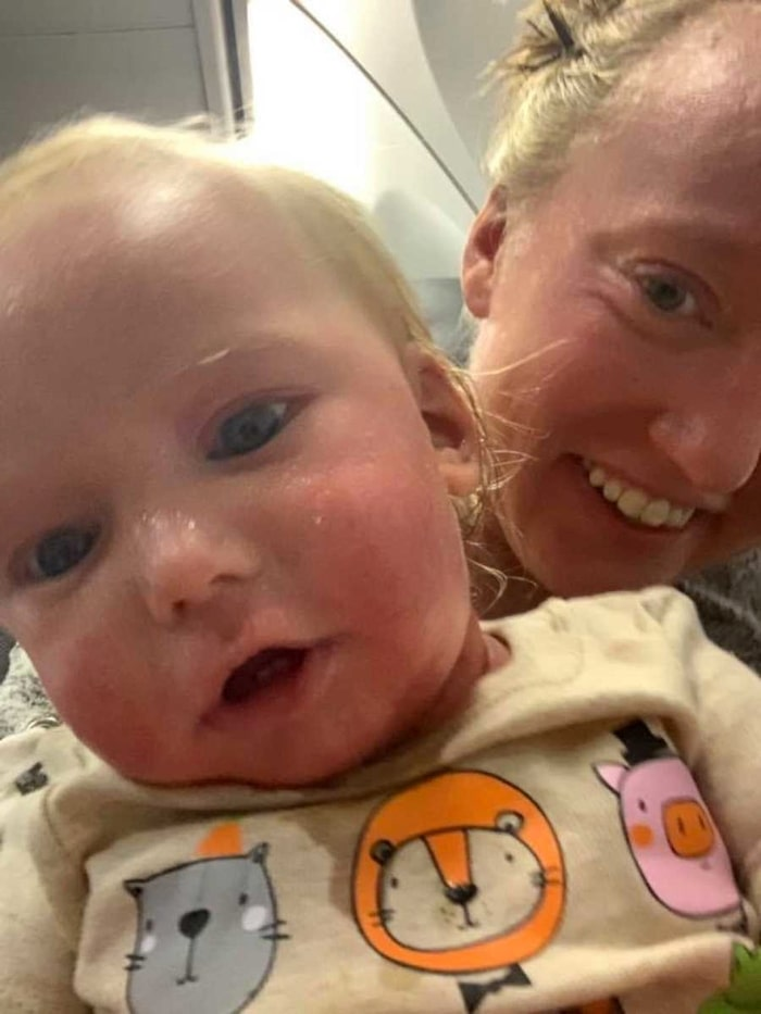 Lilla Jackson har drabbats av samma hudsjukdom som mamma Jordan.