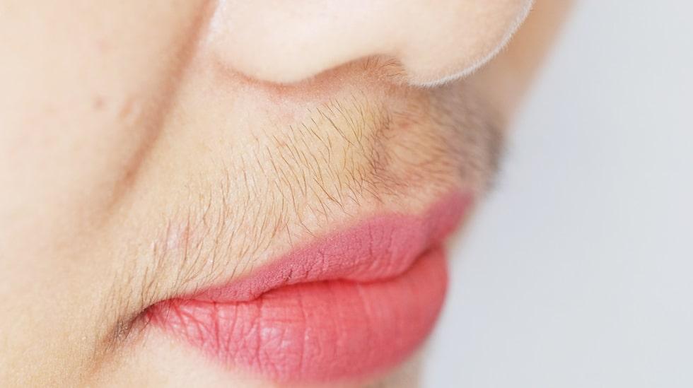 Hirsutism starkare hårväxt av manlig typ är ett vanligt symptom. Det kan vara i ansiktet, men också på bröstkorg, rygg, benn och runt ljumskarna.