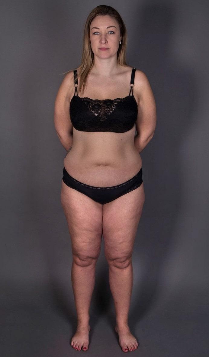 Först som 35-åring fick hon diagnosen lipödem - en störning i fettvävnaden som innebär symmetriskt förstorade ben, lår eller rumpa trots att resten av kroppen kan vara normalviktig. Här före operation.