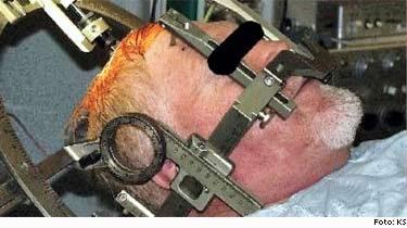 Kapsulotomi innebär att centrala nervbanor i hjärnan skärs av. Metoden har av sjukvården länge ansetts vara en drastisk men effektiv och säker behandling för psykvårdspatienter där inget annat hjälpt.