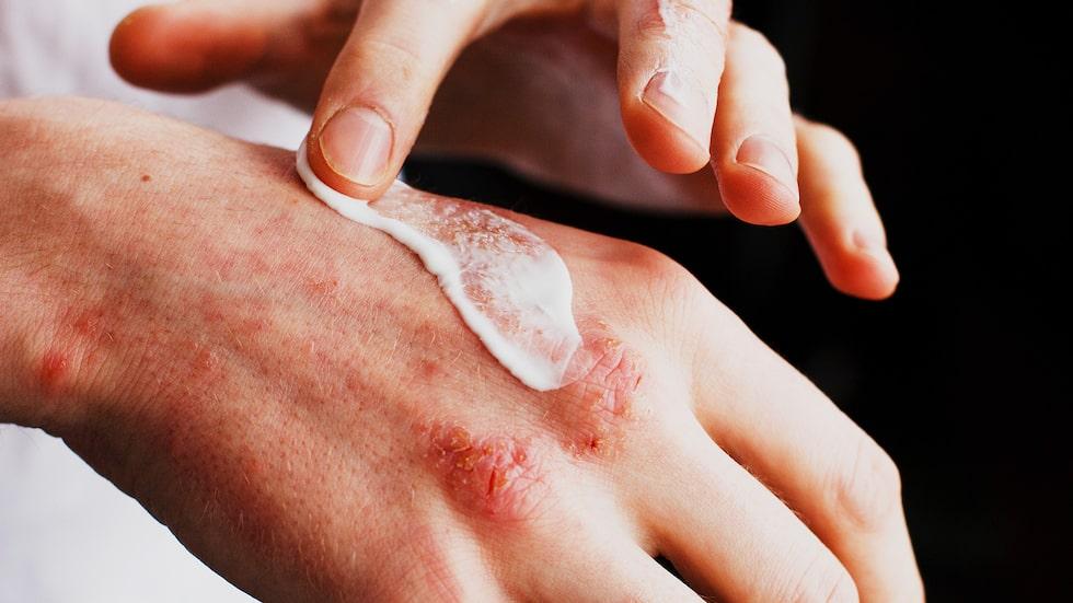 30 procent av befolkningen har anlag för atopiska eksem vilket bland annat innebär en bristfällig hudbarriär. Symptom är att huden blir torr och kliar; man får röda, fjällande, knottriga utslag på händerna, halsen, i ansiktet, arm- eller knäveck.