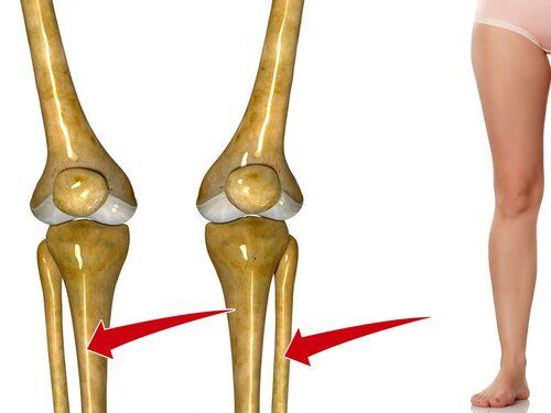 Hos löpare är stressfrakturer vanligast på skenbenet (till vänster). Även vadbenet (till höger) kan drabbas.